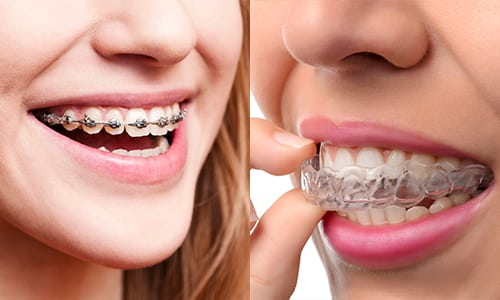 The Great Debate: Clear Aligners vs. Traditional Braces